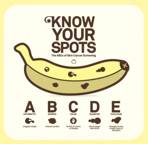 know your spots